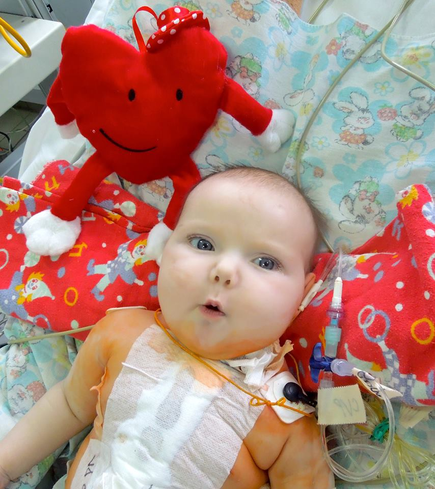 Baby Liza after her operation